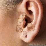 agulha para acupuntura auricular Serra da Cantareira